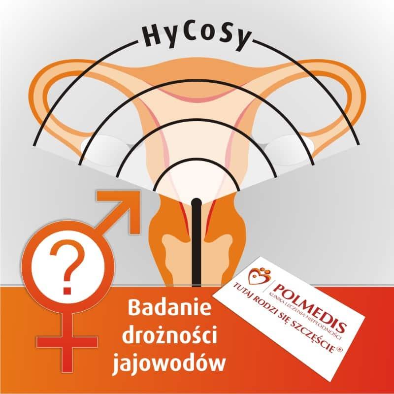 badanie drożności jajowodów metodą hycosy
